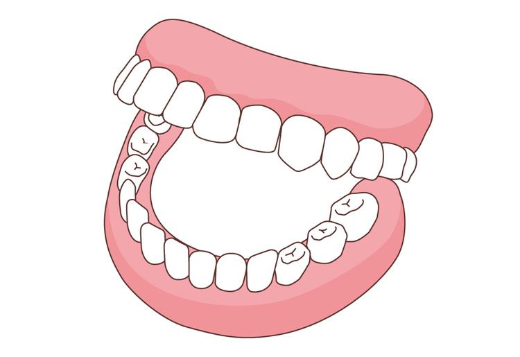 入れ歯の夢